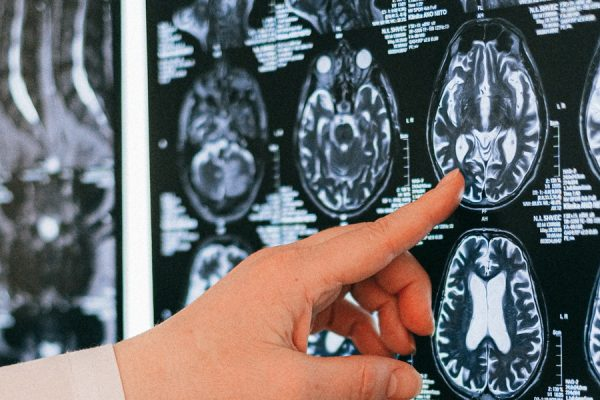 Will Biogen's Highly Anticipated Alzheimer's Drug Receive FDA Approval Today?