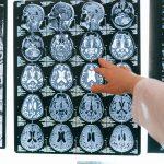 Link Between Covid-19 & Dementia