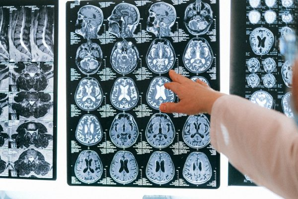 Alzheimer's Experts Raise Concern Over Link Between Covid-19 & Dementia